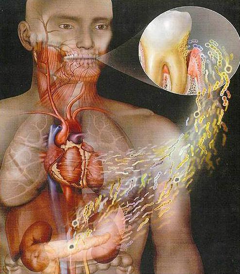 جراثيم الفم والأسنان تخرب الرئة