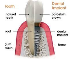 زرعات أسنان مضادة للتهابات اللثة والتي تحتوي زيركون ثورة جديدة عالم الأسنان zirconimplant-m1.jpg