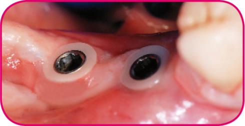 زرعات أسنان مضادة للتهابات اللثة والتي تحتوي زيركون ثورة جديدة عالم الأسنان zira3a-raznocena4.pn