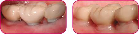 زرعات أسنان مضادة للتهابات اللثة والتي تحتوي زيركون ثورة جديدة عالم الأسنان zira3a-tbrimplant8.j